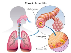 chronic-bronchitis