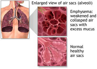 2.47 diseases associated with smoking: a* understanding ... tobacco damage diagram damage diagram toyota #10