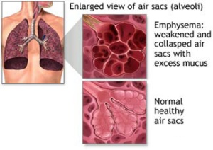 Emphysema_Diagram