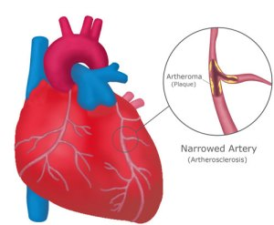 Heart-&-narrowed-artery