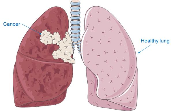 Lungs pmg biology diseases of the cardiovascular system associated with smoking ccuart Choice Image